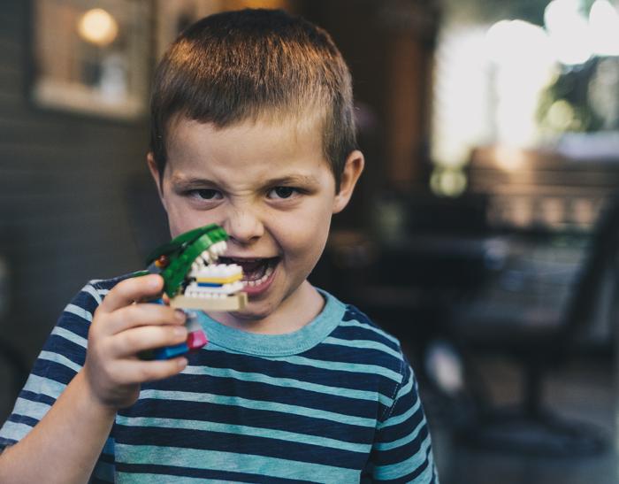 Почему у детей развивается неправильный прикус