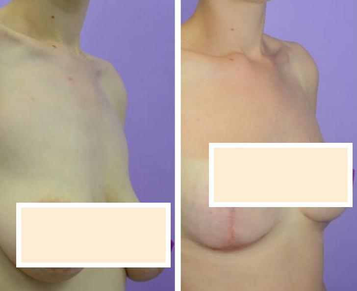 Маммопластика после родов и грудного вскармливания