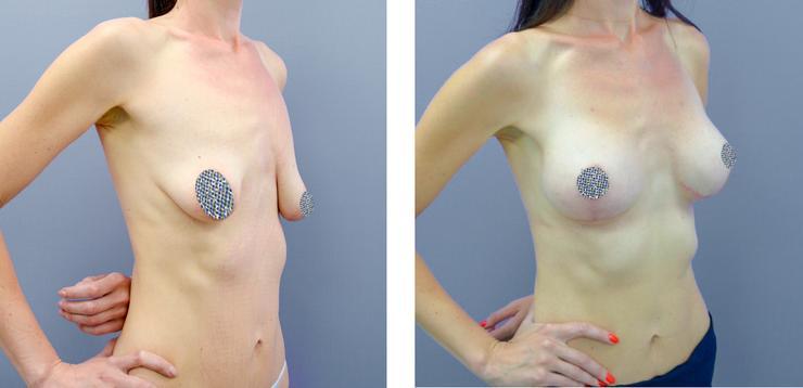 Всегда ли красота требует жертв: мифы и правда о грудных имплантах