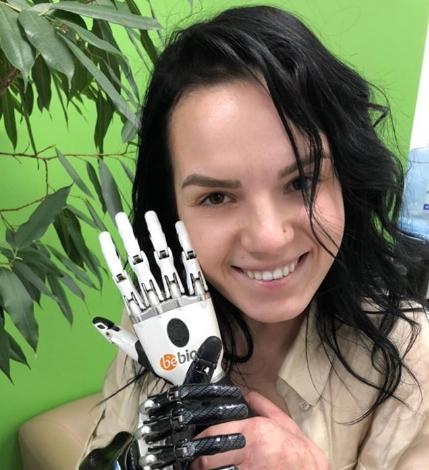 Лишившаяся руки Маргарита Грачева впервые позировала без протеза