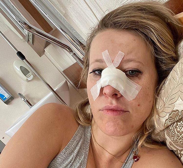 Собчак попала в больницу с переломом носа - Видео - WomanHit.ru